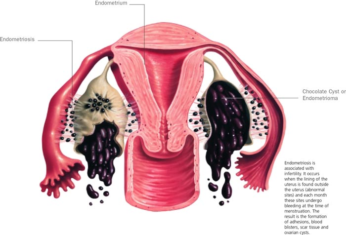 Endometriosis - Infertility Cause