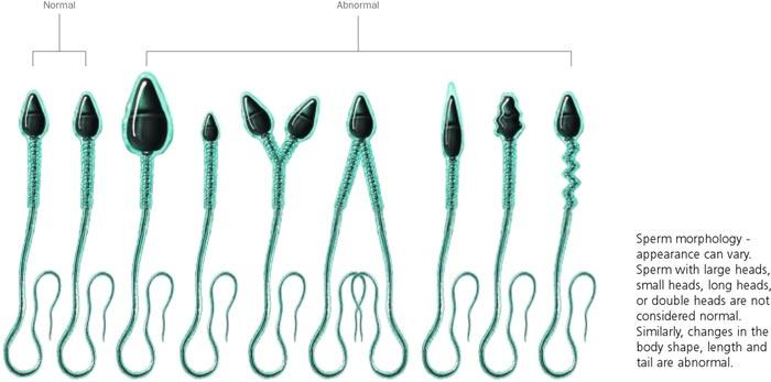 Male infertility - sperm morphology - Coastal IVF