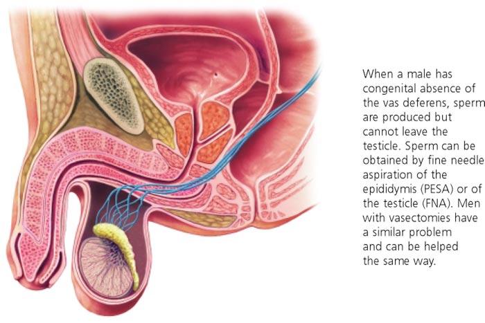 Vasectomy - Reversal -Coastal IVF Sunshine Coast